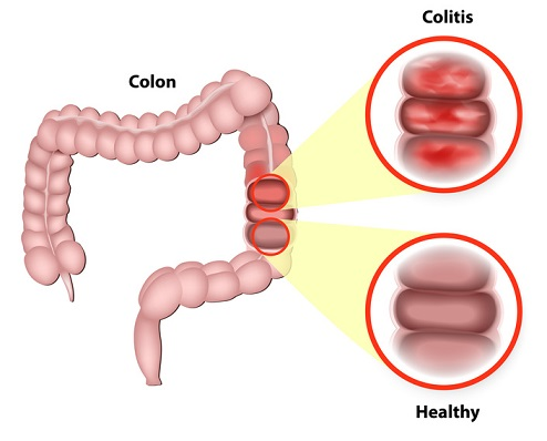 Ulcerative colitis is a chronic disease that results in inflammation of the colon's innermost layer.