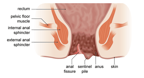 anal-fissure