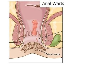 anal-warts